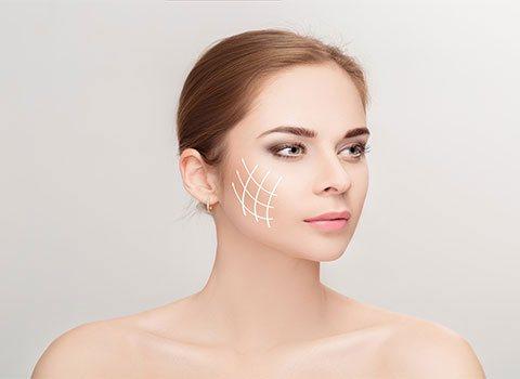 chirurgie-visage
