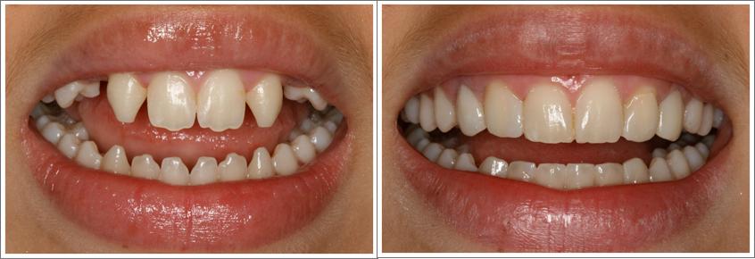facette-dentaire-tunisie-resultat