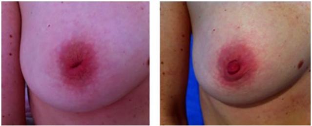 What does tender nipples mean