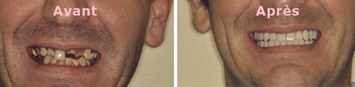 implant dentaire tunisie :plantation des dents avant apres