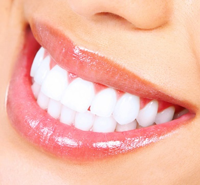 dents blanches hollywood smile
