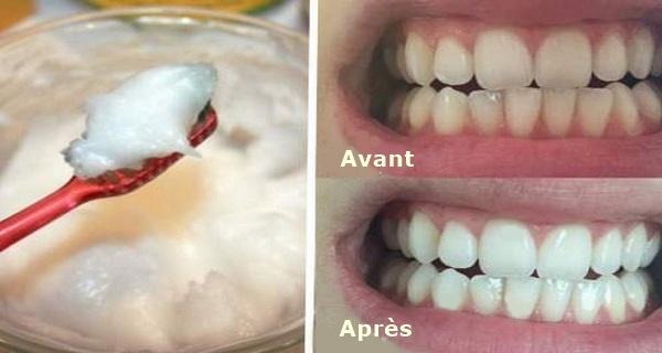 blanchiment dentaire huile noix de coco