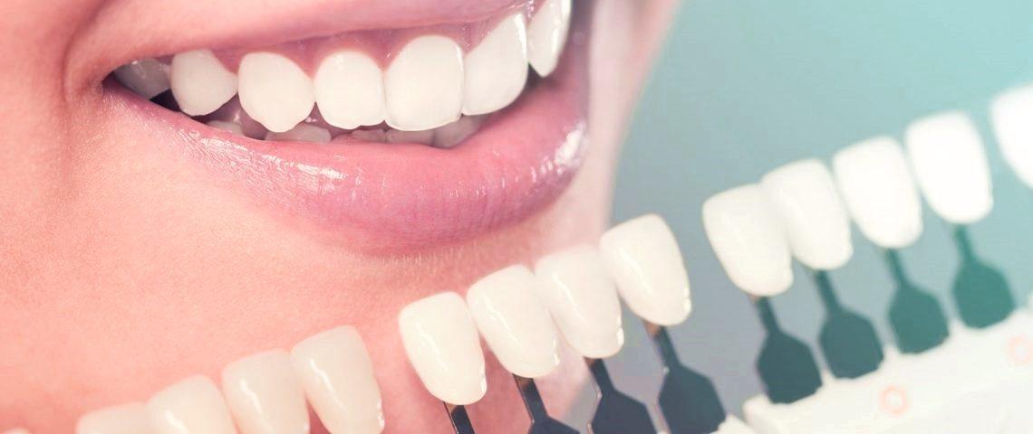 tout sur les facettes dentaires tunisie