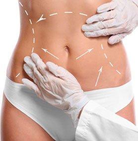 Abdominoplastie Tunisie